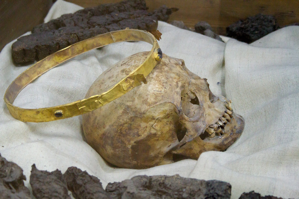 Squelette humain (origine inconnue).